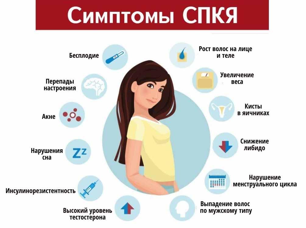 Синдром поликистозных яичников (спкя) - проблемы с зачатием