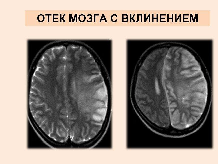 Развитие отека головного мозга: какие симптомы и как проводится лечение?