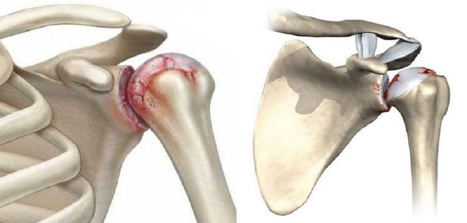 Остеоартрит суставов: причины, симптомы и лечение