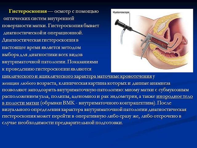 Гистероскопия: что это такое и как проводится процедура