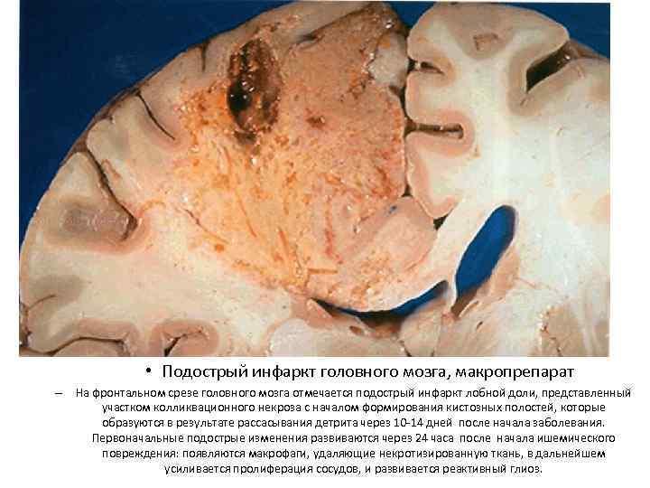 Инфаркт мозга (ишемический инсульт): причины, симптомы, диагностика и эффективное лечение в москве | фнкц фмба россии