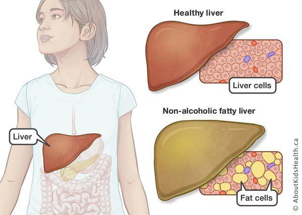 Паренхима печени: норма плотности в ед, симптомы отклонений и лечение