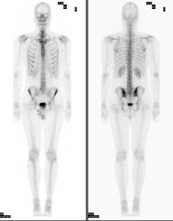 Сцинтиграфия костей скелета (остеосцинтиграфия, сканирование): подготовка, противопоказания, расшифровка результата