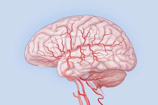Дисциркуляторная энцефалопатия (дэп): что это за диагноз и болезнь