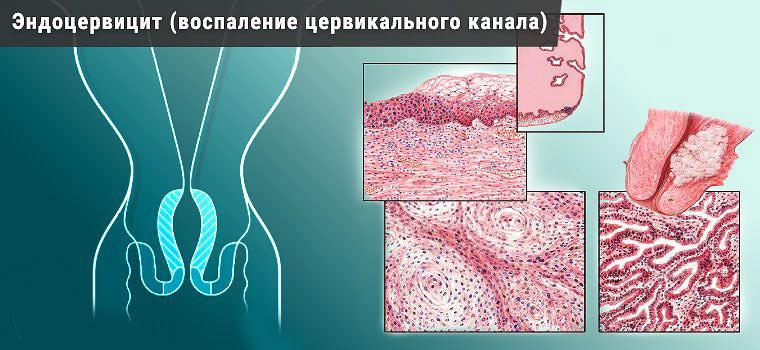 Эндоцервицит - воспалительные заболевания мочеполовой системы