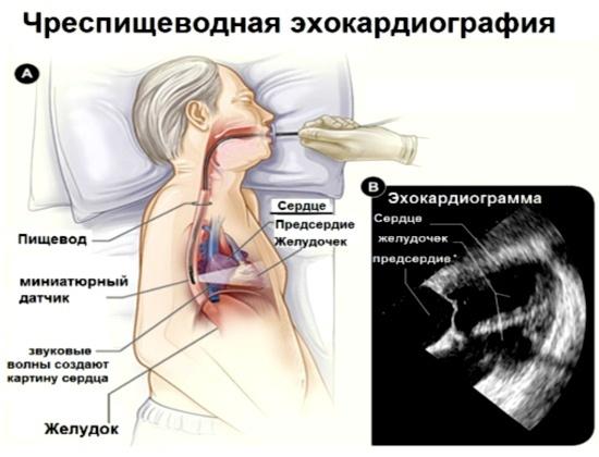 Эхо кг сердца: что это такое, фото / проведение процедур для внутренних органов