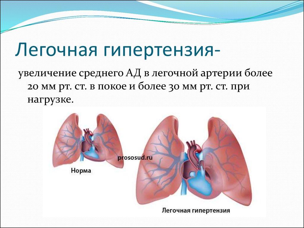 Хроническое легочное сердце: причины, симптомы и лечение