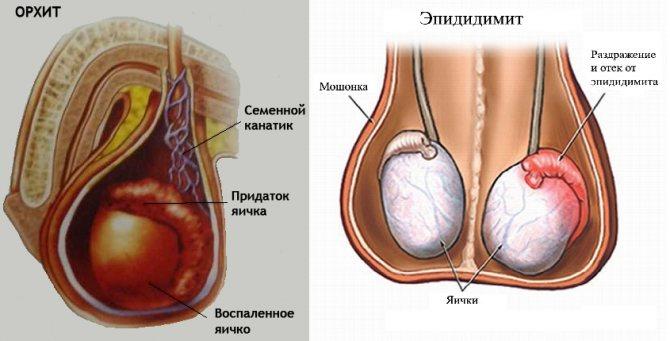 Уреаплазма парвум у женщин: надо ли лечить?