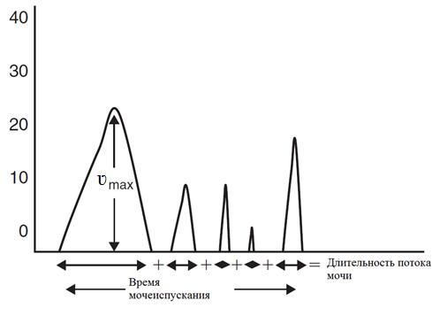 Урофлоуметрия в диагностике урологических заболеваний