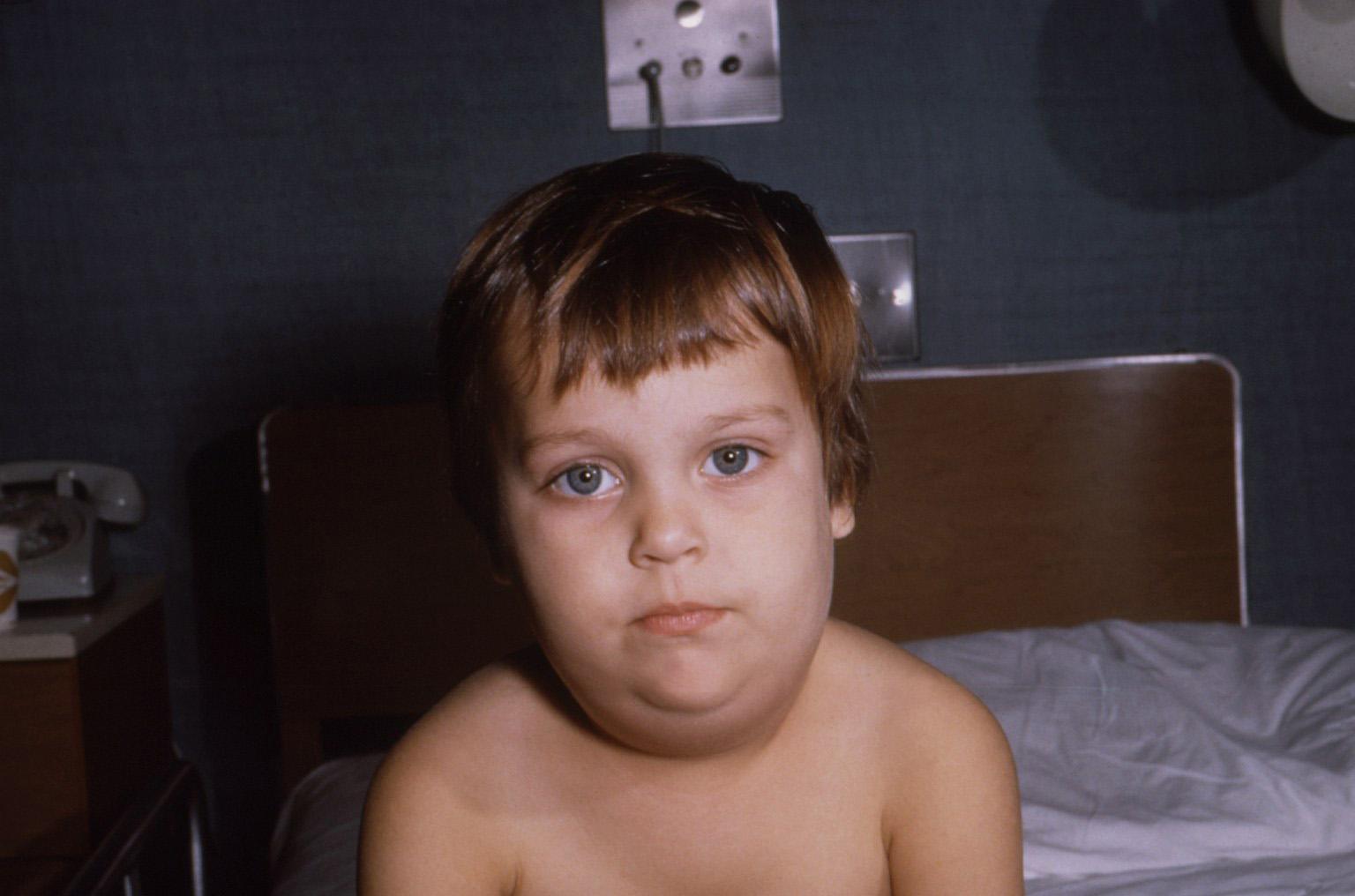 Эпидемический паротит — википедия с видео // wiki 2