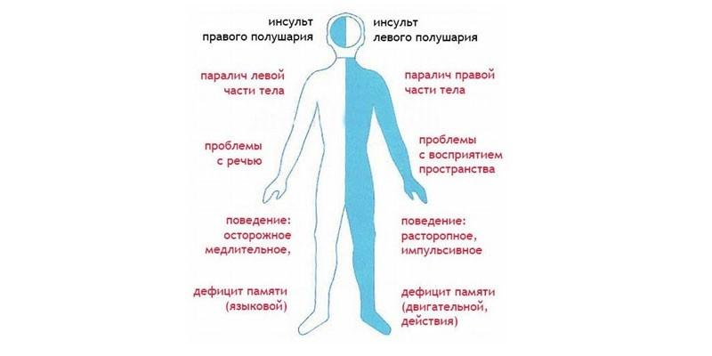 Гемиплегия — большая медицинская энциклопедия