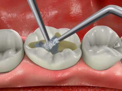 Какие виды пломб для зубов лучше
