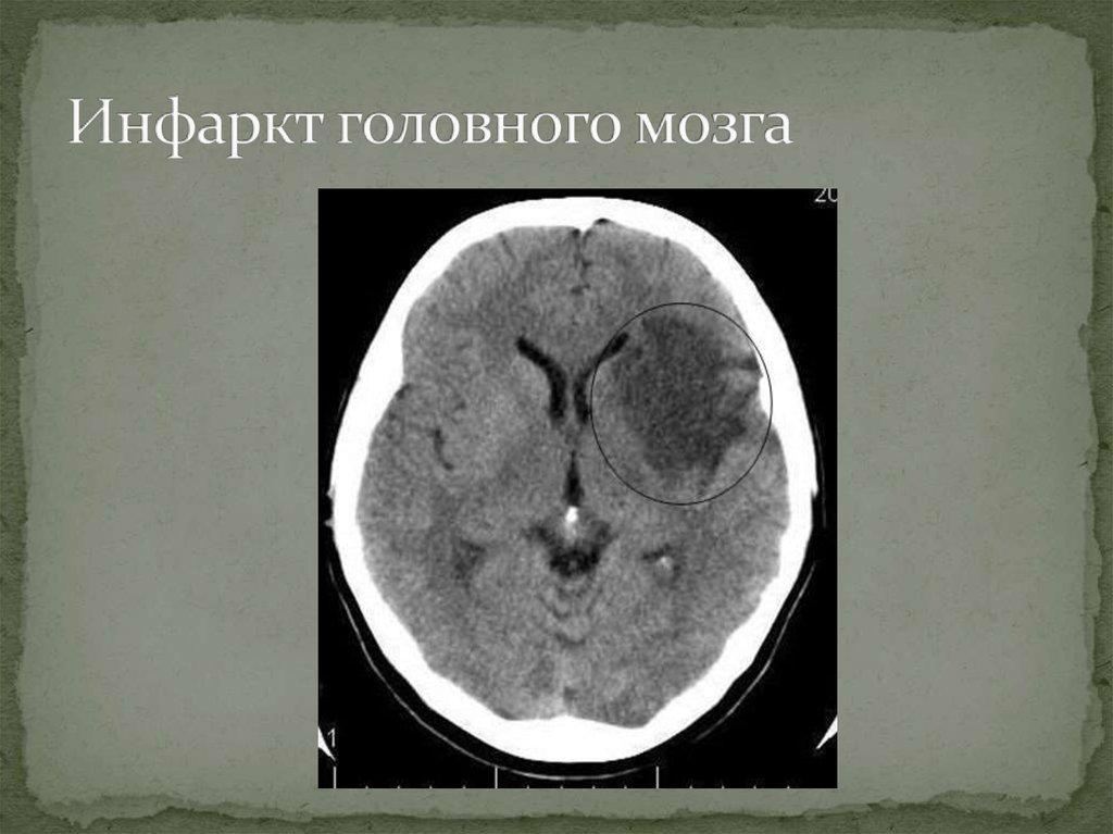 Инфаркт головного мозга: причины, симптомы, диагностика и лечение